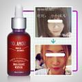 瘦脸的最快方法|瘦脸霜|怎样瘦脸|瘦脸产品排行榜