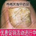 治疗灰指甲的特效药|治疗灰指甲最好的药|如何治疗灰指甲|灰指甲