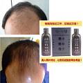 怎样防止脱发|脂溢性脱发怎么办|中医治疗脱发|生发产品|生发水